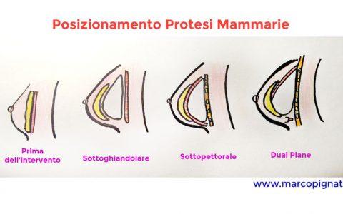 Protesi mammarie Dott. Marco Pignatti
