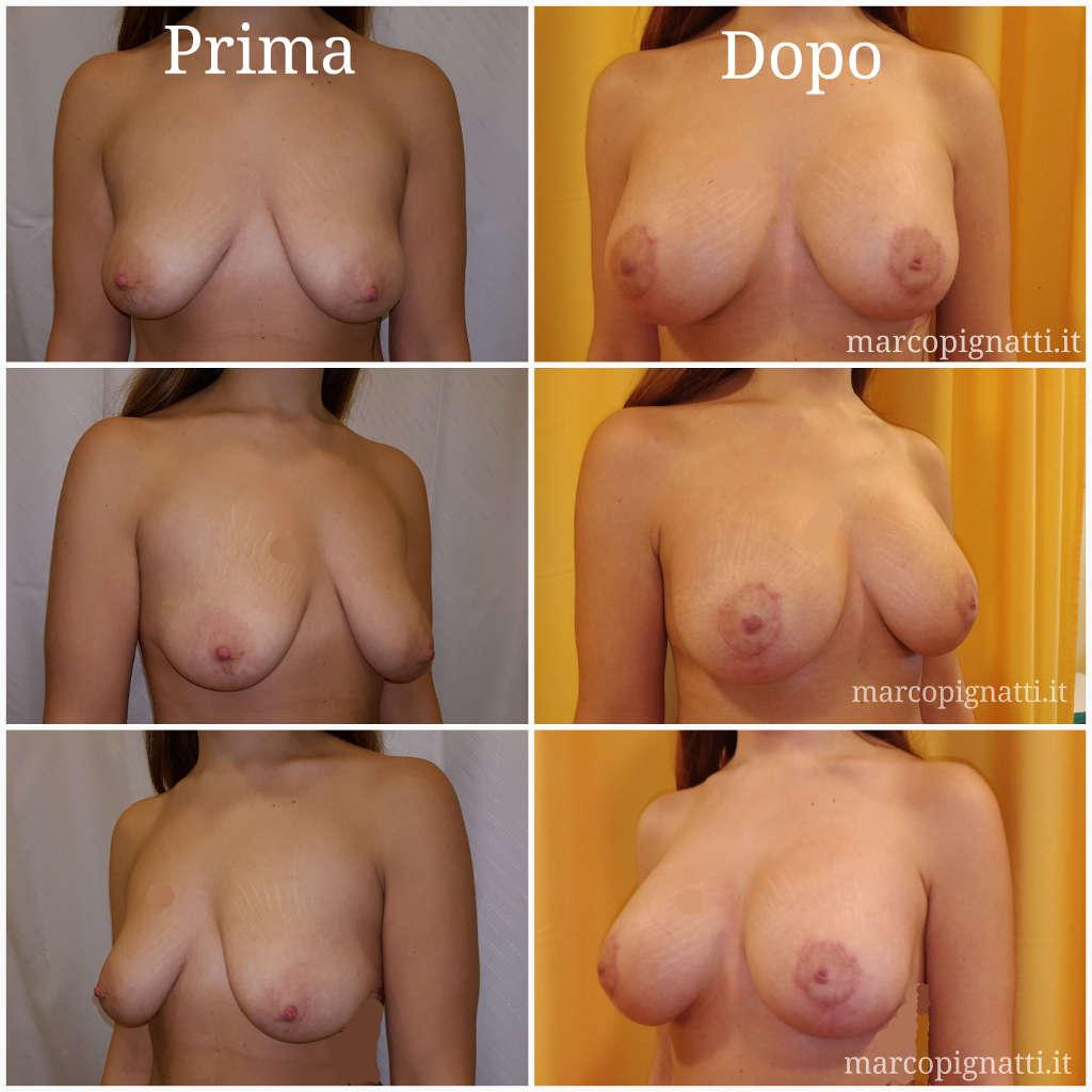 Mastopessi Prima e Dopo